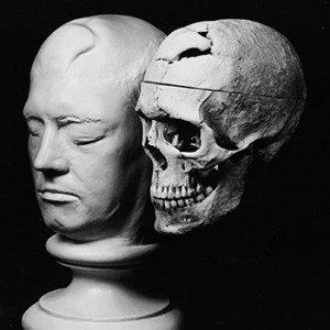 "Phineas Gage life cast and skull. <span class=""credit"">Photo: Warren Anatomical Museum</span>"