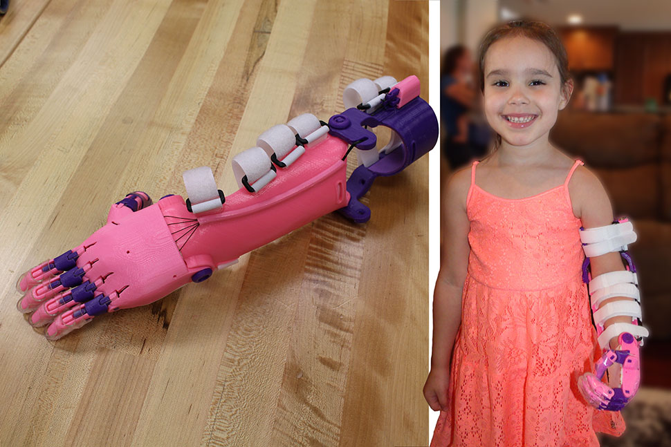 "Five-year-old Katelyn poses with her new prosthetic limb, the ""Unlimbited"" design from the e-NABLE website. It was 3D printed by a group of volunteers at the Clear Lake City-County Freeman branch library in Harris County, Texas."